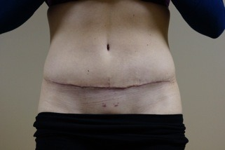 stomach after front