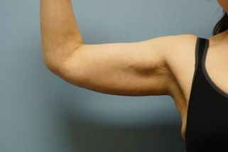 arm-lift-after-1