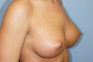 breast-augmentation-after-2