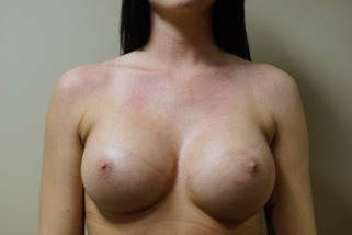 breast-augmentation-after-3