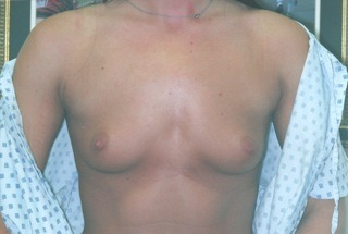 breast-augmentation-before-1