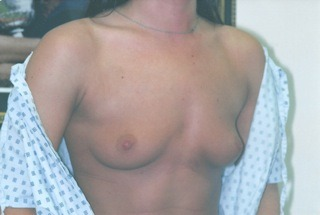 breast-augmentation-before-2