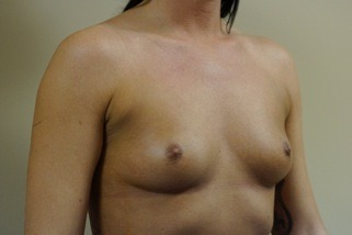 breast-augmentation-before-3