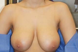 breast-reduction-before-1