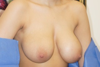 breast-reduction-before-2