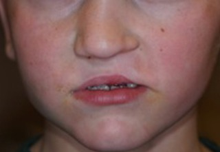 cleft-lip-after-2-2